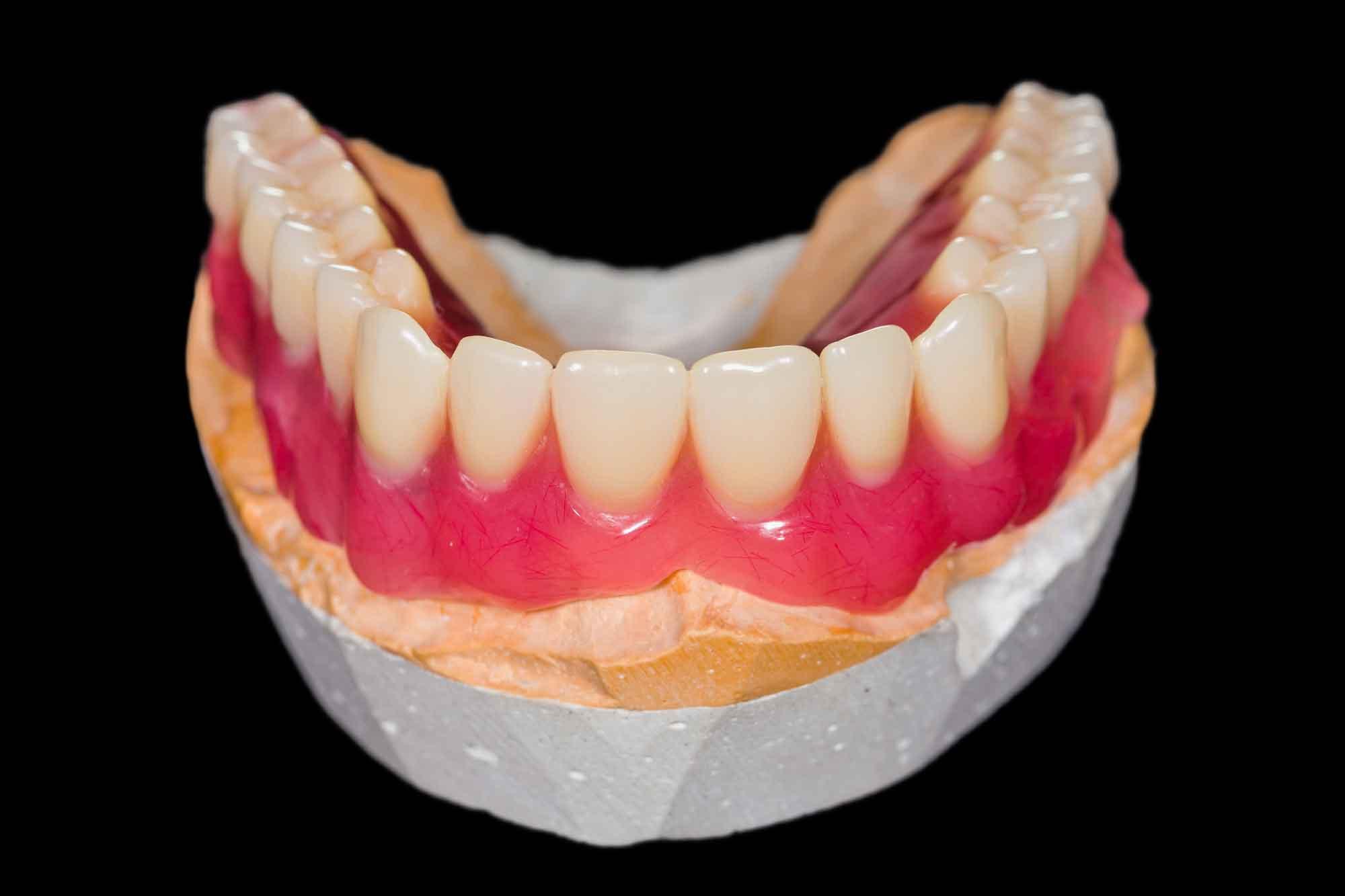 Методы фиксации съемного зубного протеза 1
