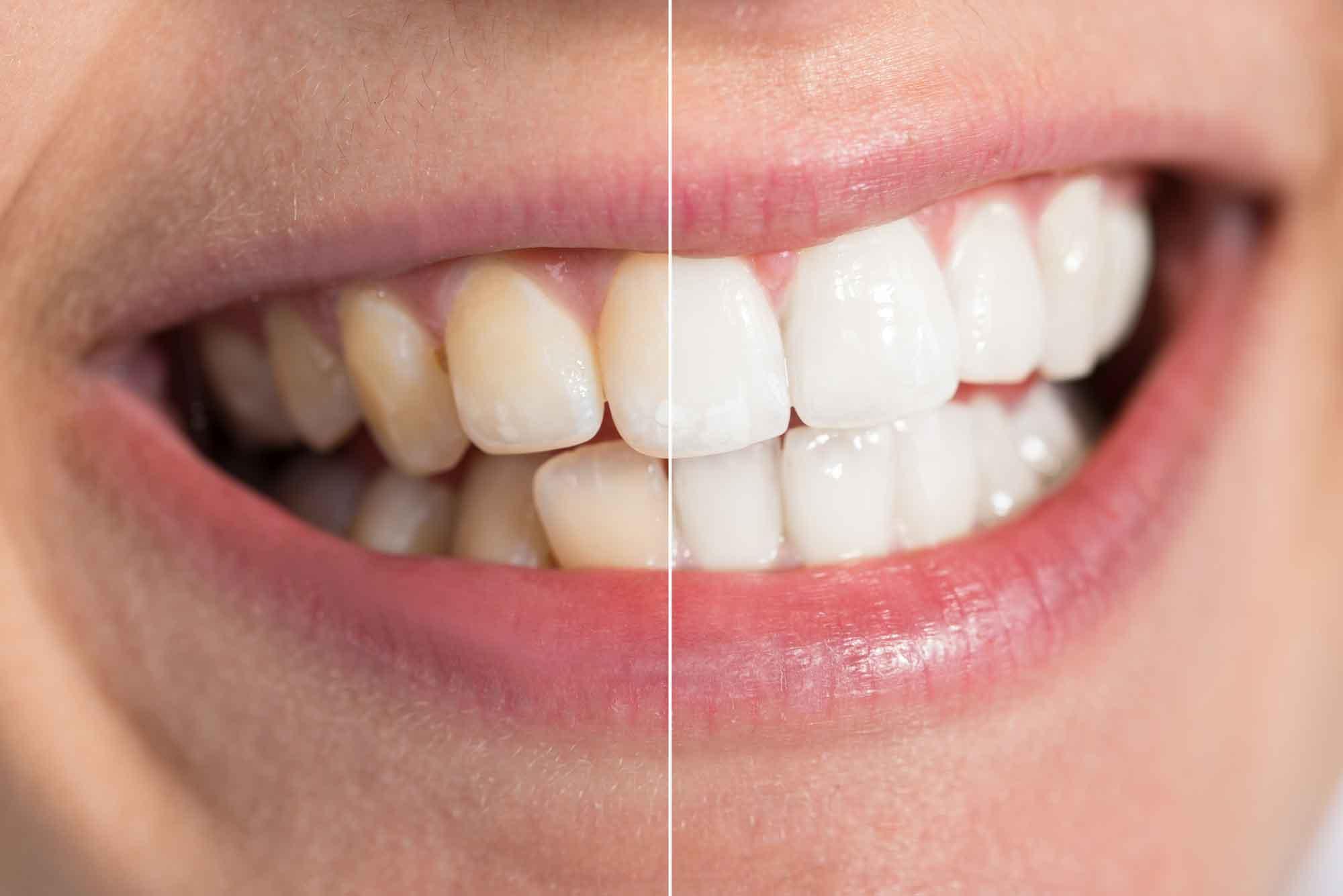 Отбеливание зубов: за и против  0