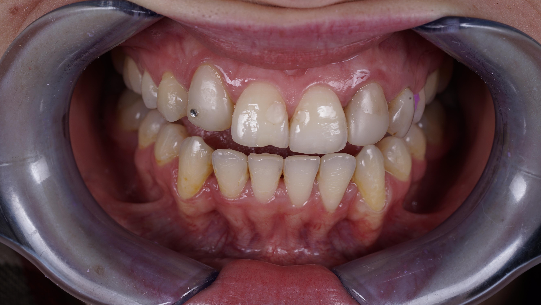 Искусство художественной реставрации зубов. 0