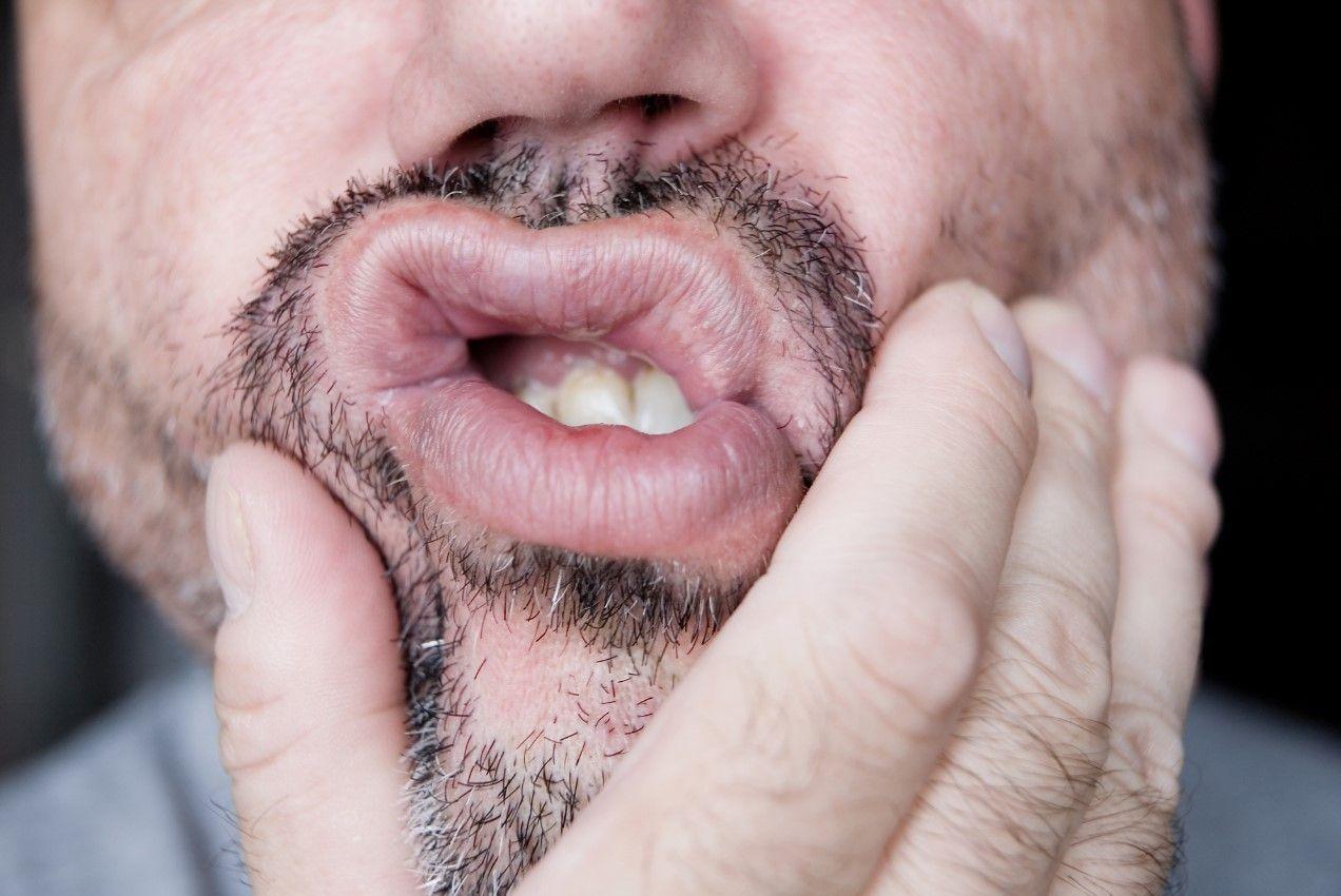 Почему убывает десна, оголяется шейка и корень зуба?