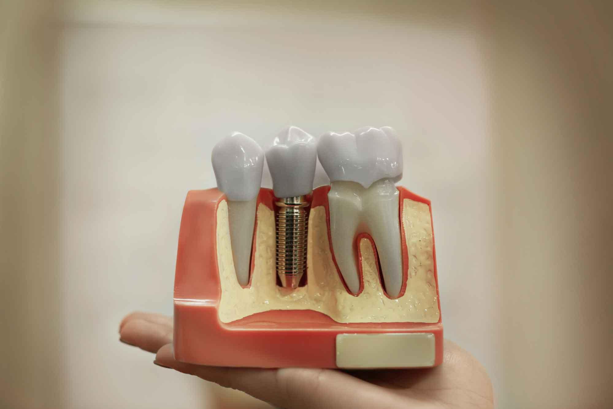 Безболезненная имплантация зубов.