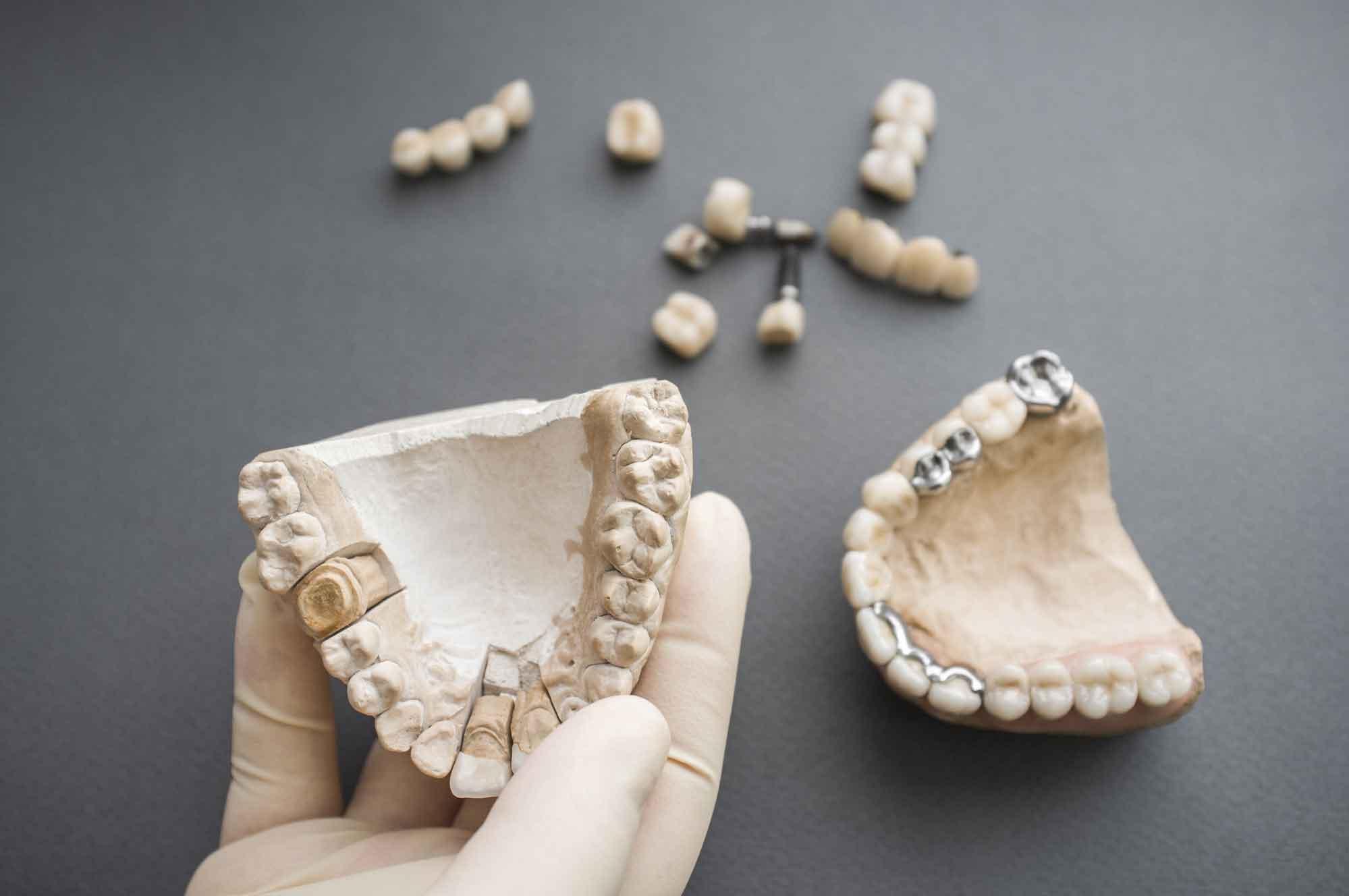 Бюджетная имплантация зубов 1