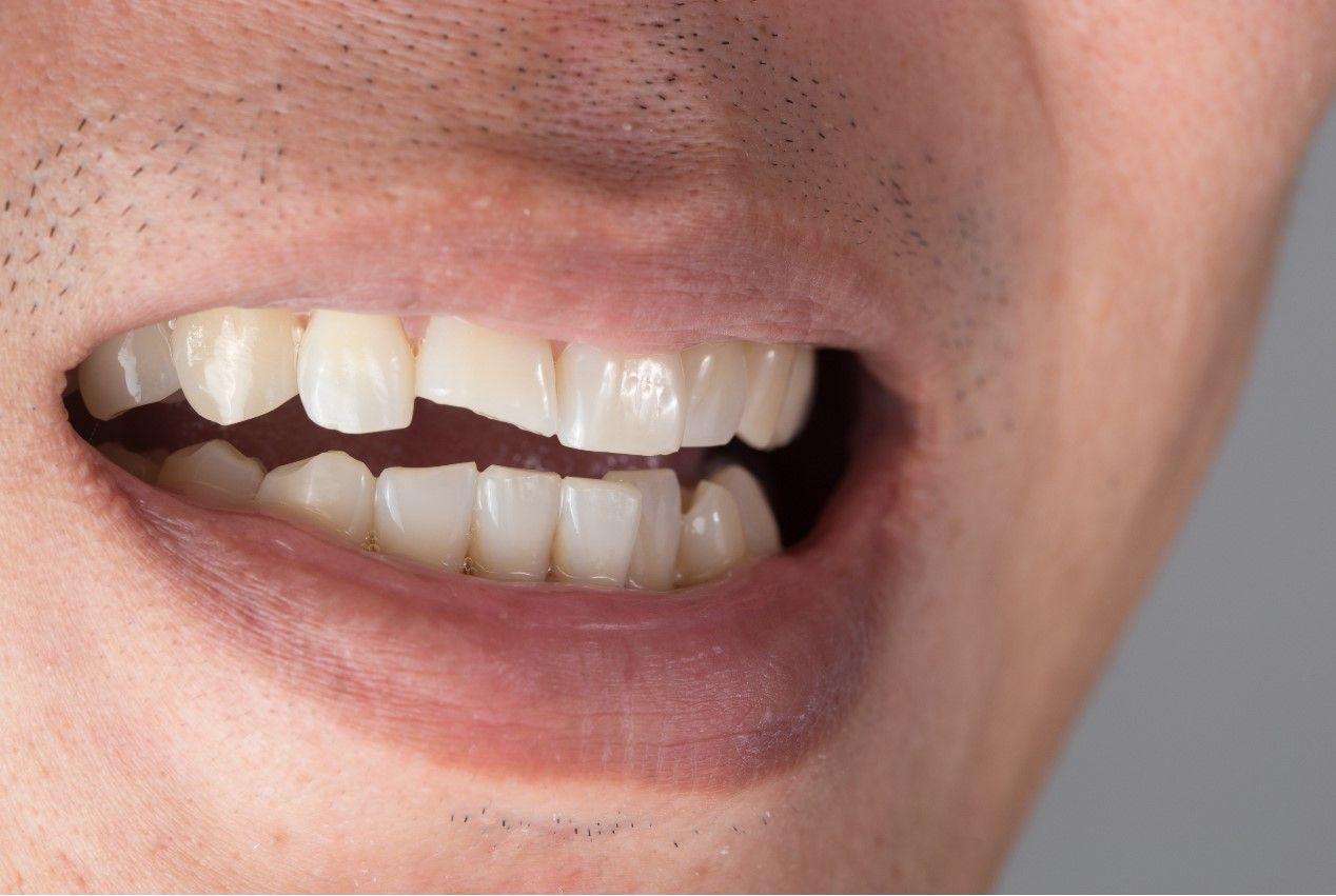 Перелом переднего зуба