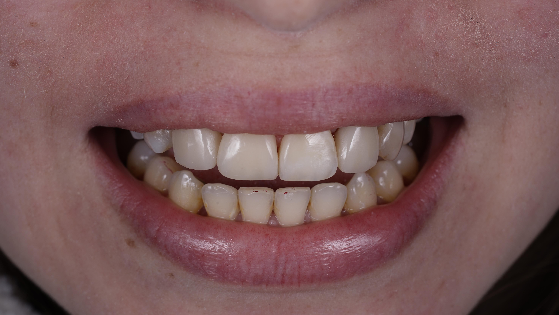 Искусство художественной реставрации зубов. 2