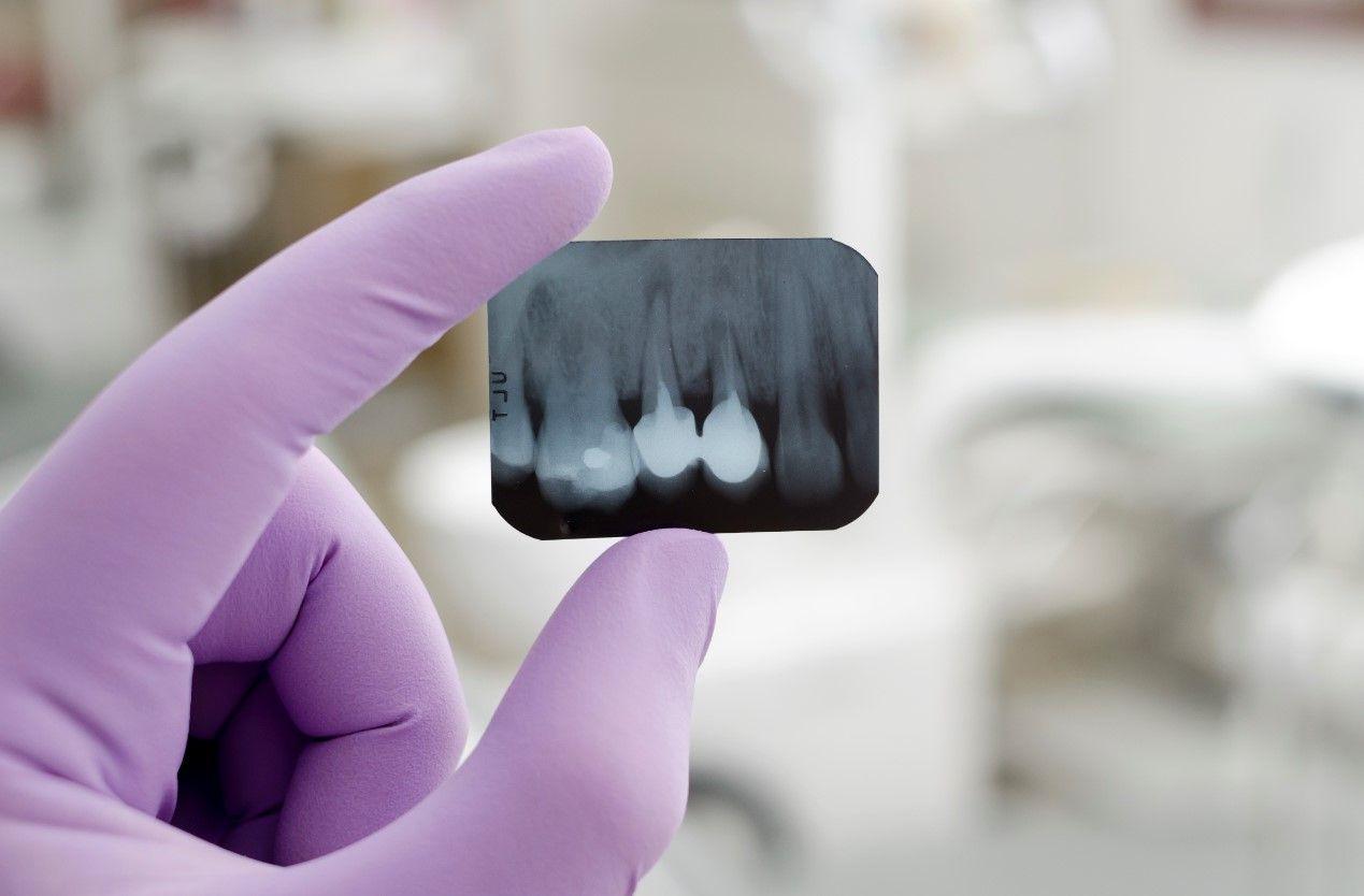 Лечение и перелечивание зубных каналов