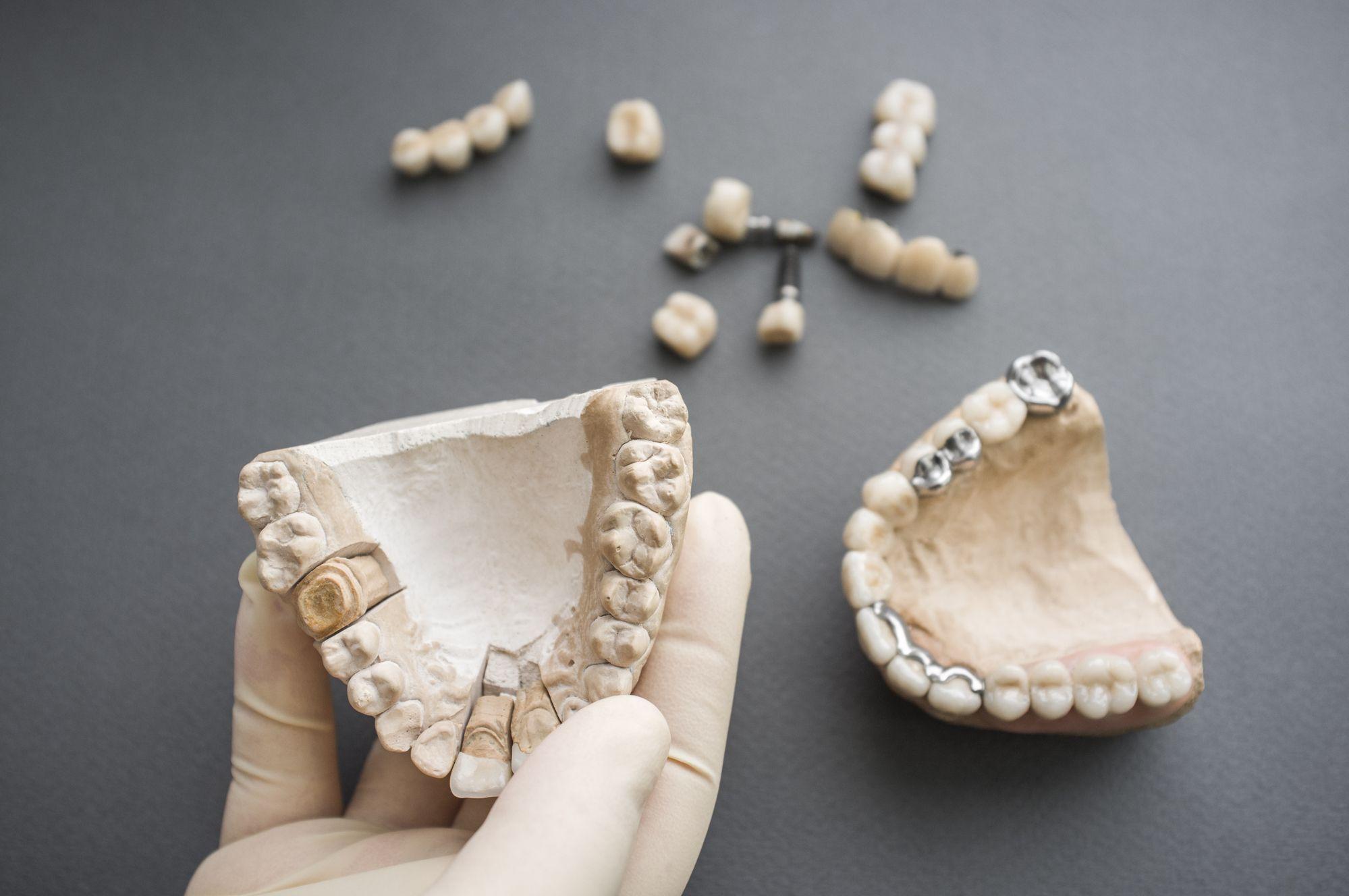Методы фиксации съемного зубного протеза 3