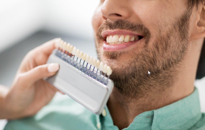 На какие зубы можно ставить циркониевые коронки?