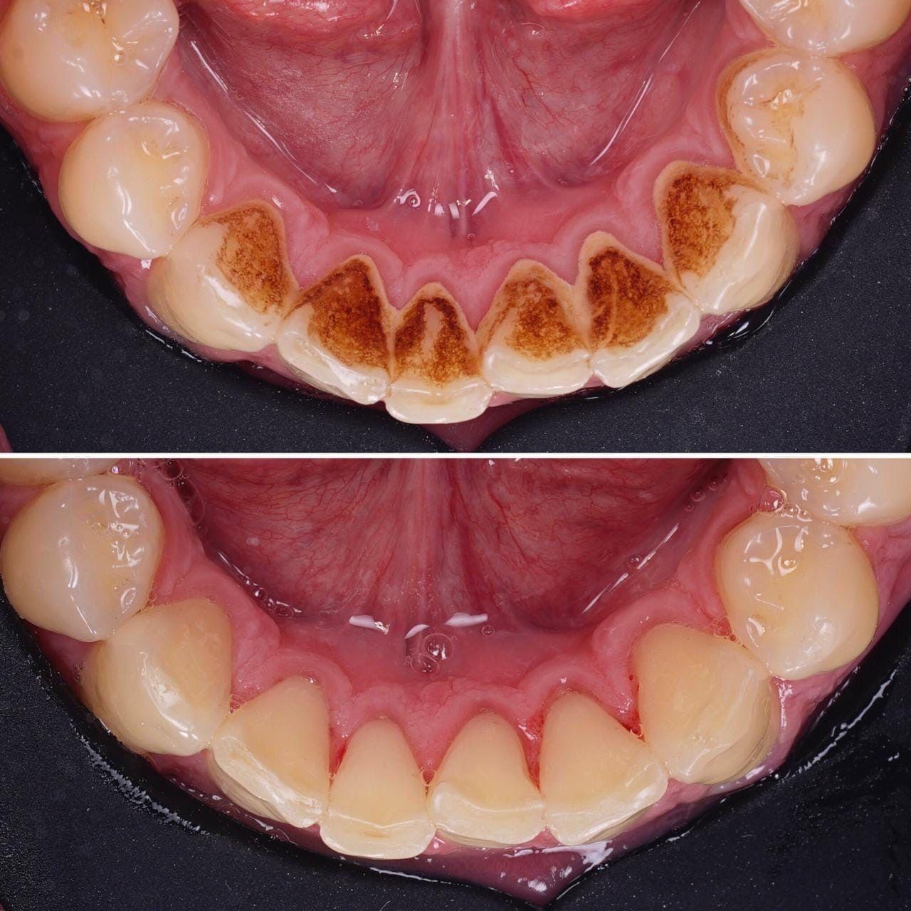 Профессиональное отбеливание зубов 0