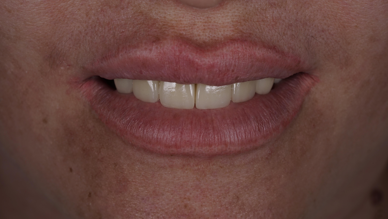 Можно ли поставить виниры если нет зубов? 0