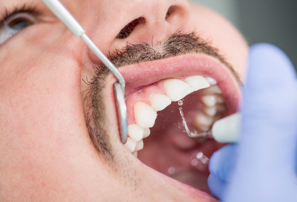Что такое зубной камень?!
