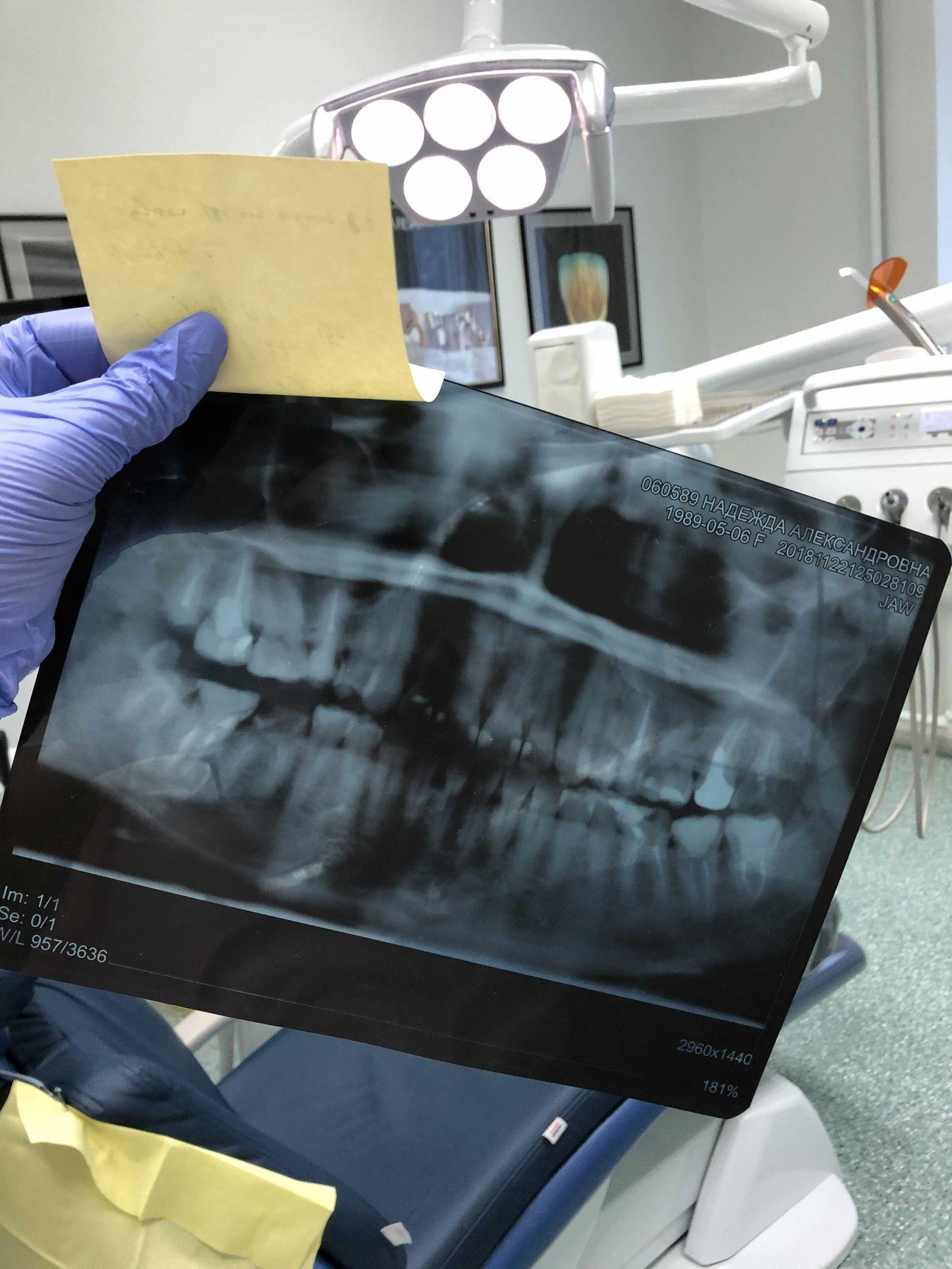 Можно ли вылечить сложный случай или лучше удалить больной зуб? 0