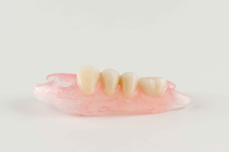 Нейлоновые зубные протезы 2