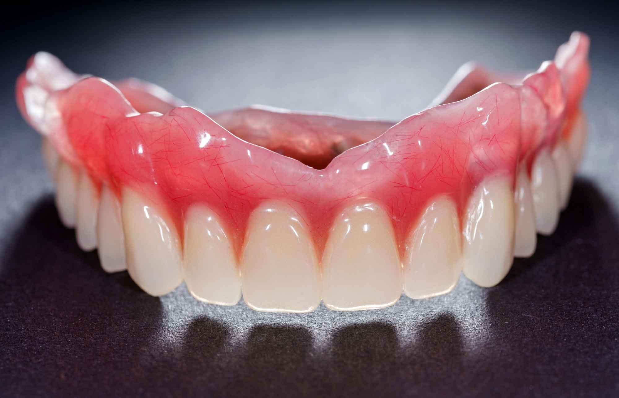 Методы фиксации съемного зубного протеза 0
